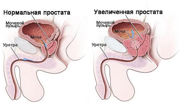 Лечение простатита от фекального энтерококка