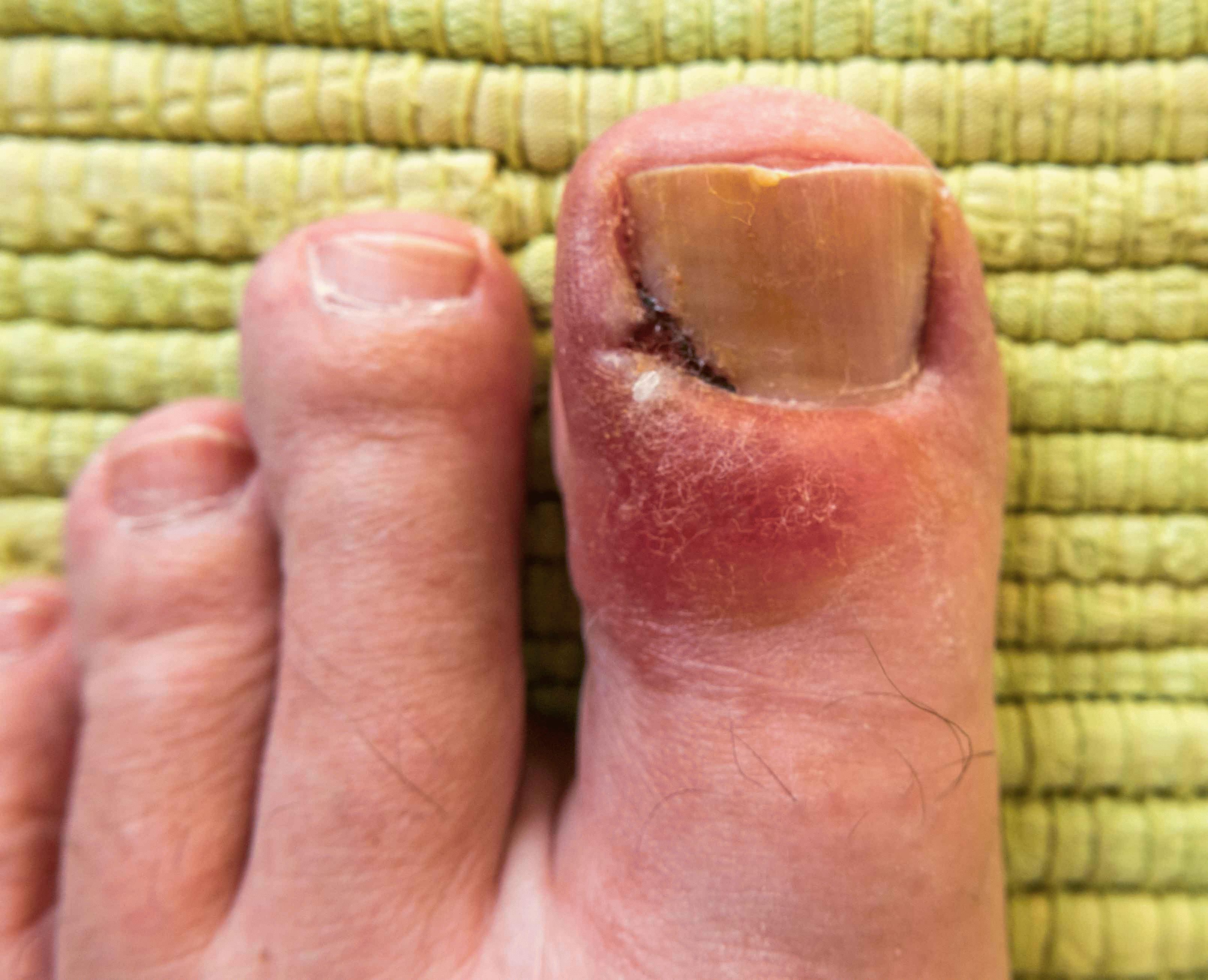 Как лечит гнойное воспаление на пальце ноги