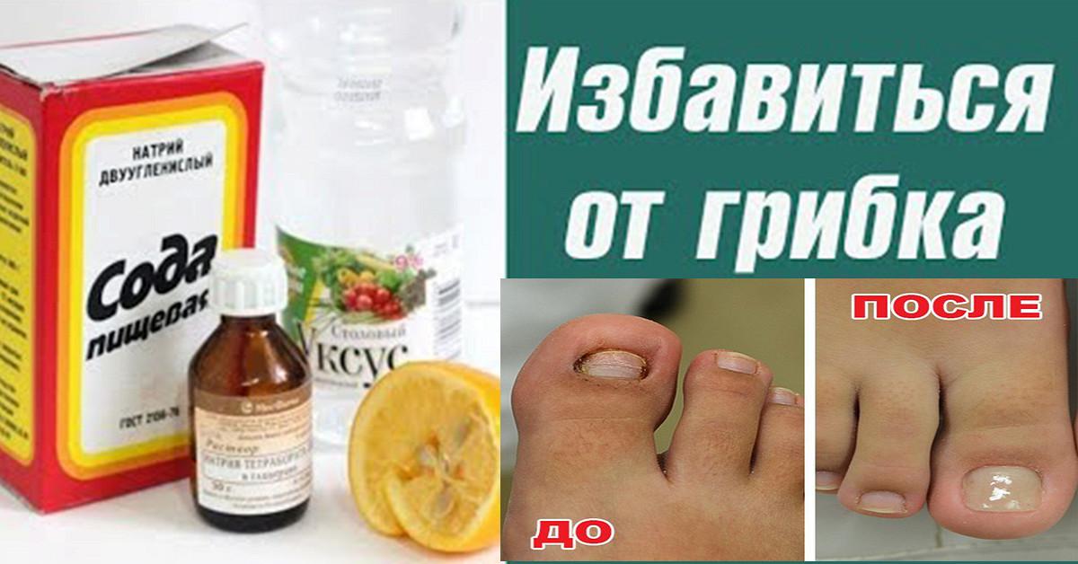 Как избавиться от грибка на ногтях ноги в домашних условиях