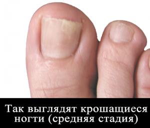 Крошатся ногти на ногах