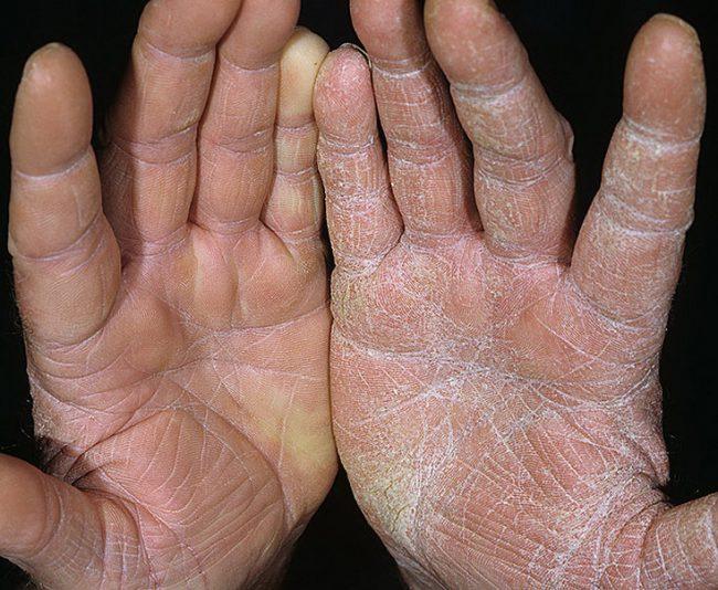 Как избавиться от грибка на ладонях рук