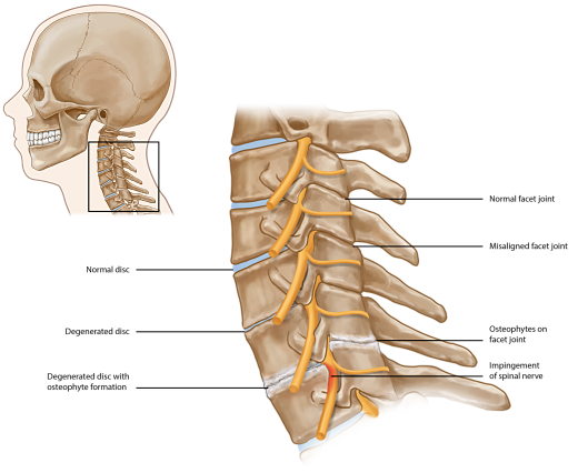 Write my cervical spondylolisthesis symptoms