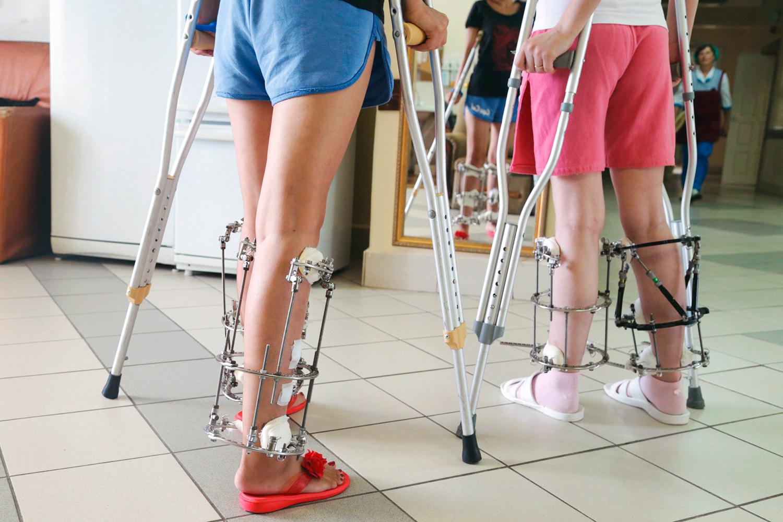 Пластическая хирургия конечностей удлинение ног в кургане пластическая хирургия вашим фото