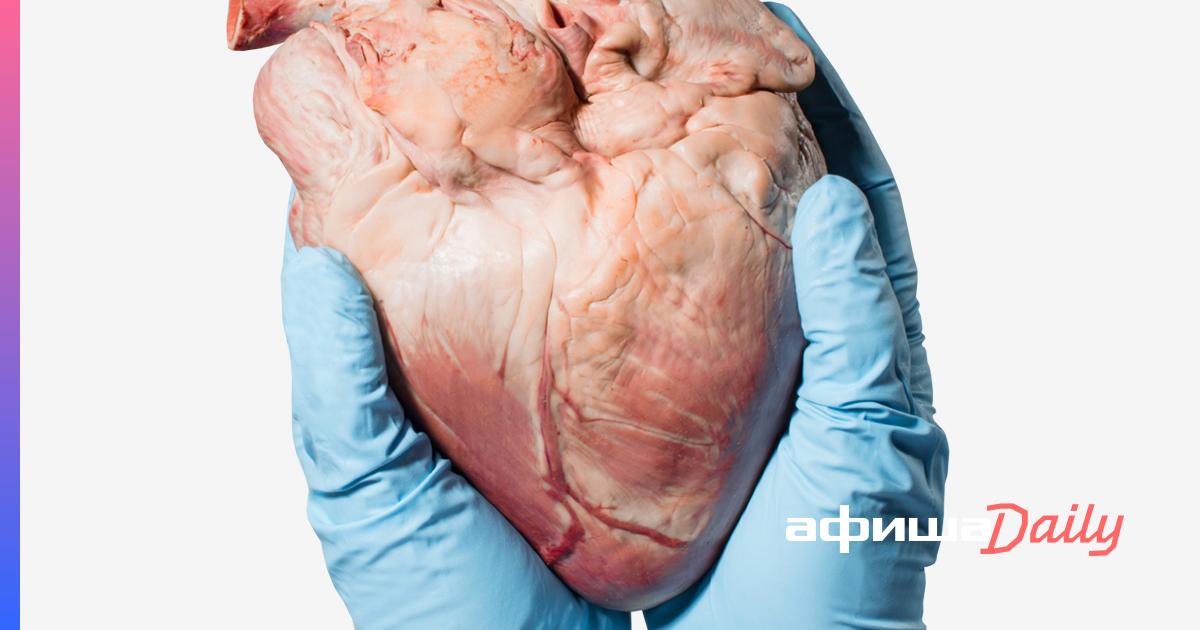 Донорство органов после смерти: как будут меняться российские законы