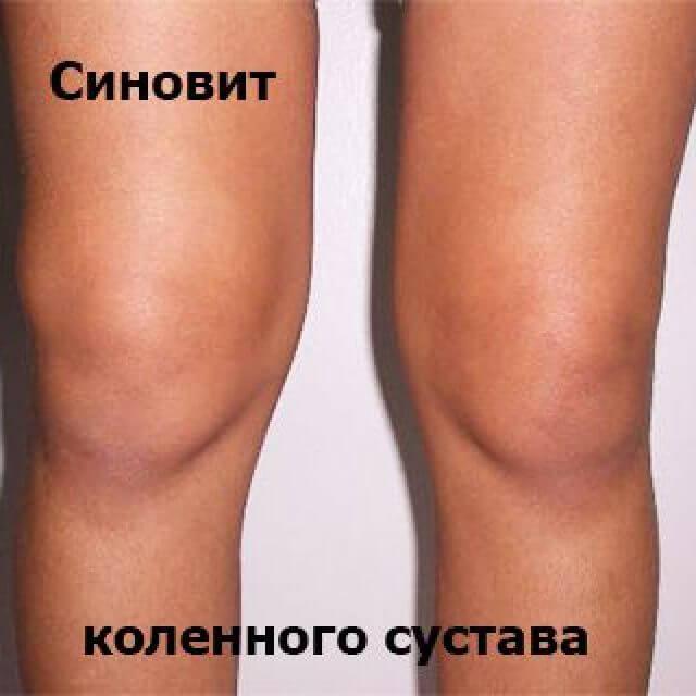 Болит нога под коленкой сзади что это - Боли в ногах