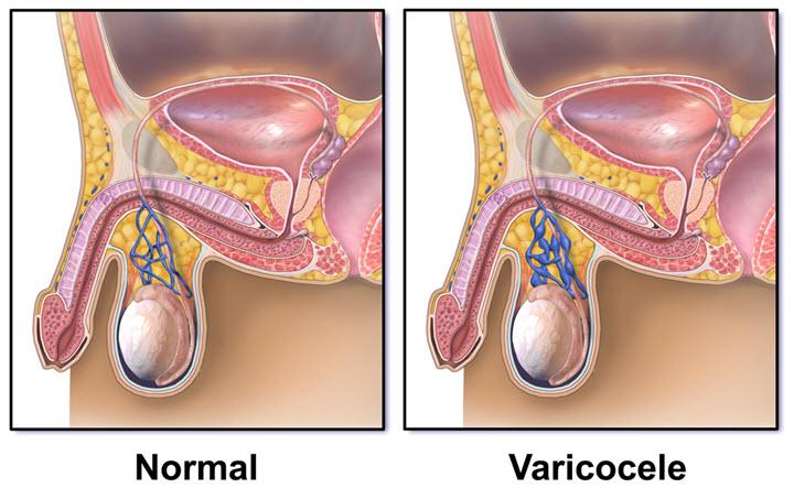 Может ли варикоцеле привести к импотенции