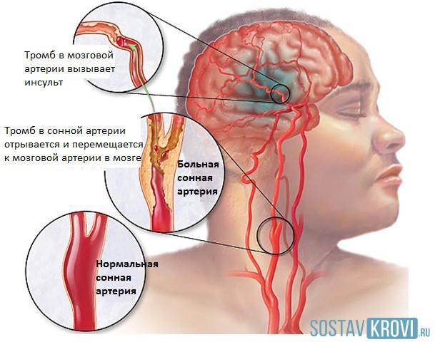Остеохондроз шейный остеохондроз симптомы