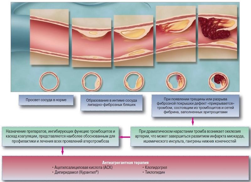 воспаление интимы сосудов лечение